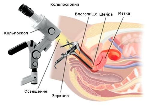 Кольпоскопия при эрозии шейки матки: цель, проведение, результаты
