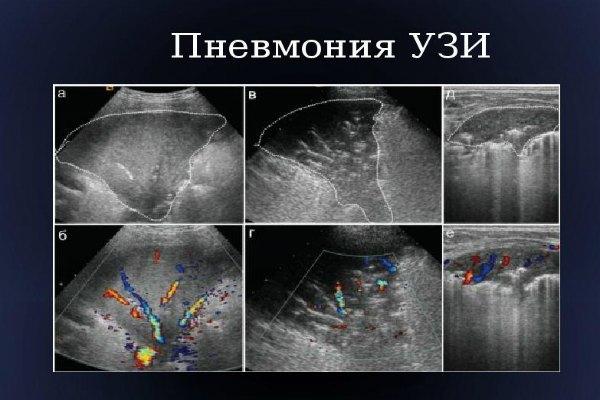 УЗИ грудной клетки