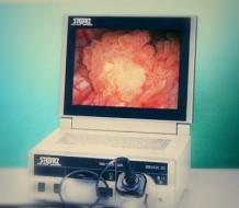 Уретроцистоскопия: показания, подготовка, проведение и результаты