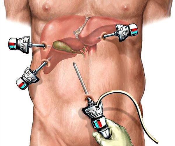 Лапароскопия при удалении желчного пузыря: послеоперационный период