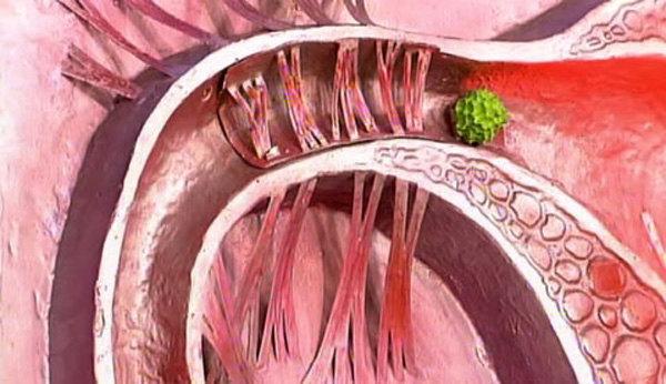 Рентген маточных труб (ГСГ) на проходимость: показания, подготовка