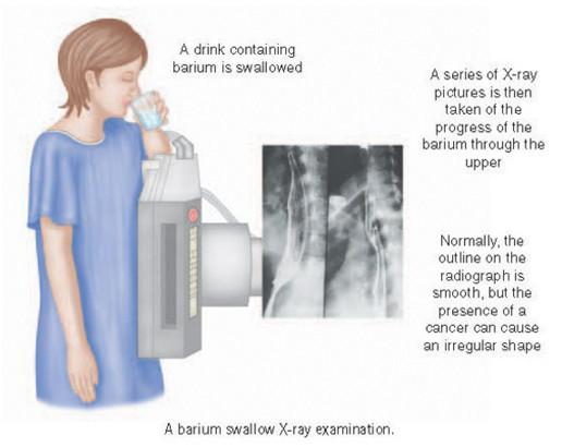 Рентгеноскопия желудка с барием: подготовка, методика проведения, результаты