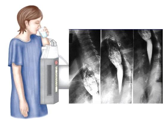 Рентген (рентгенография) пищевода с барием: подготовка, проведение