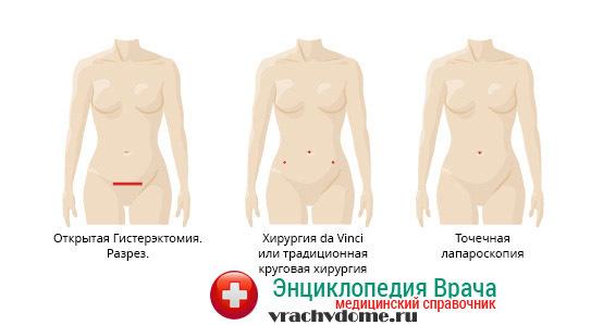 Лапароскопия кисты яичника с целью удаления: подготовка, проведение, восстановление