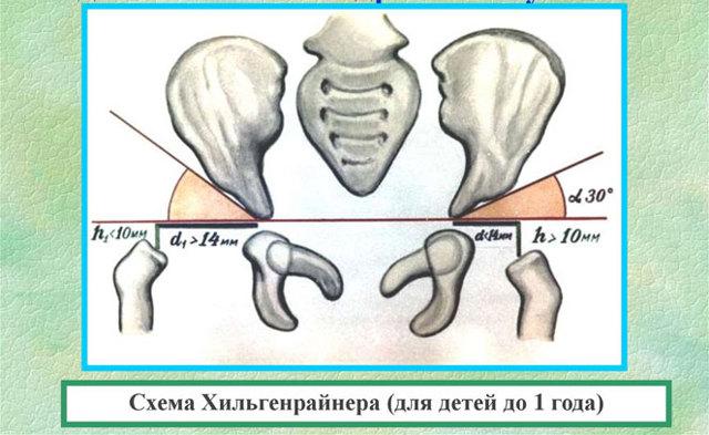 Рентген тазобедренных суставов у детей: норма, расшифровка, патология