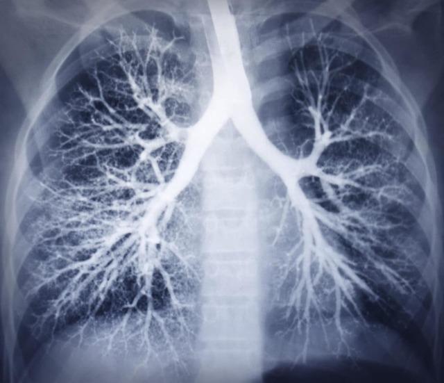 Рентген легких при бронхите: как выглядит на рентгеновском снимке?