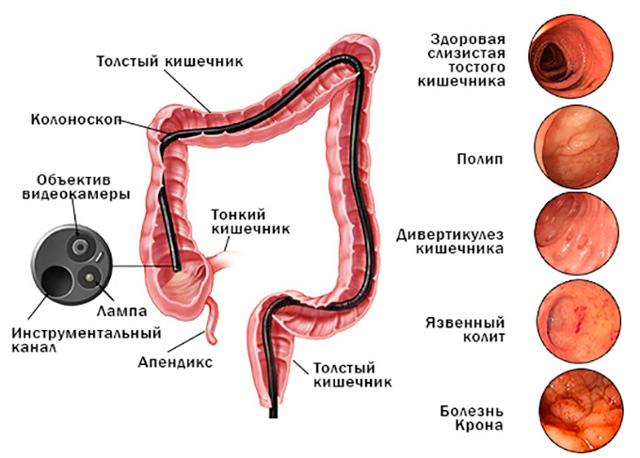 Колоноскопия при геморрое: когда можно делать?