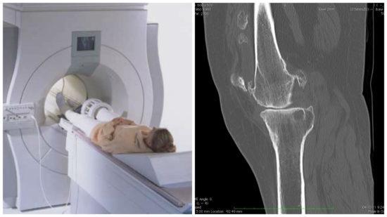 КТ коленного сустава: показания, проведения и достоверность
