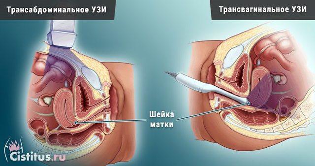 УЗИ шейки матки при беременности