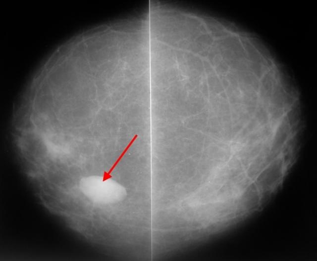 Рентген (рентгеновская маммография) молочных желез