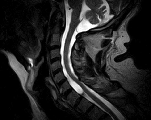 МРТ шейного отдела позвоночника: что показывает?