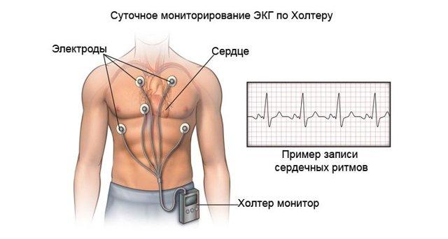 Суточный ЭКГ мониторинг - доступное каждому научное достижение для выявления нарушений ритма