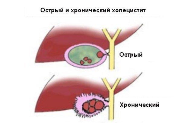 УЗИ желчного пузыря: подготовка, показания, норма