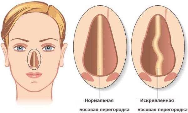 КТ носовых (околоносовых) пазух: показания, проведение и результаты