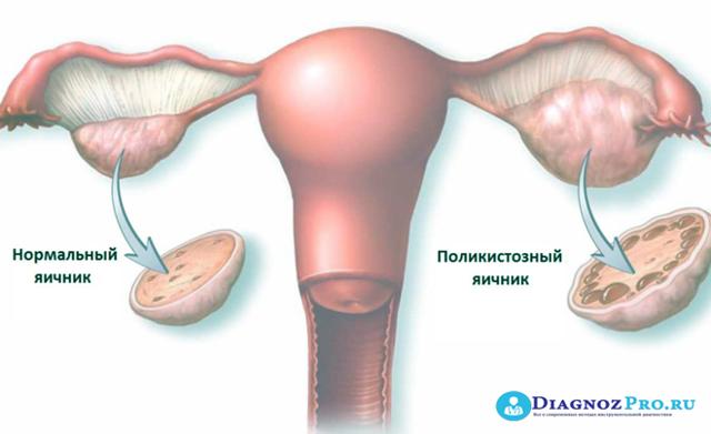 Беременность после лапароскопии: когда и через сколько возможно?
