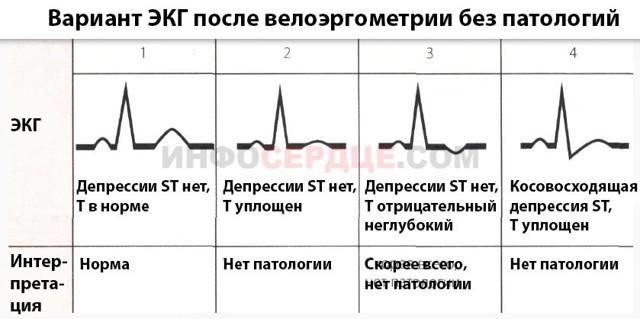 Велоэргометрия (ВЭМ) – что это такое, подготовка, проведение, показатели