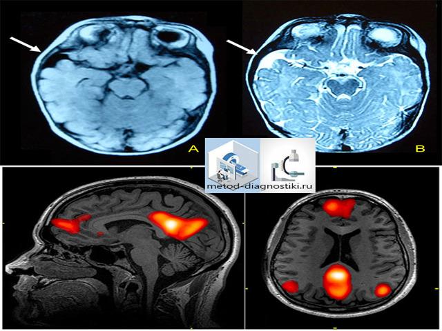 Показания и противопоказания для МРТ головного мозга
