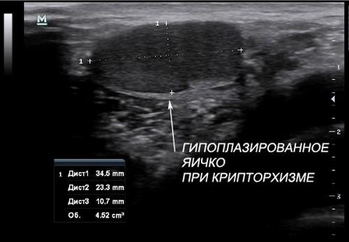 УЗИ мужских органов: мошонка и яички