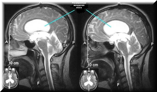 Обзорная МРТ головного мозга - что показывает?